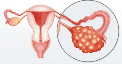 Descopera mai multe despre sindromul ovarelor polichistice